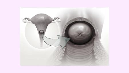 Der Muttermund – So beobachtest Du ihn richtig